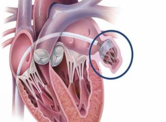 La fibrilación auricular puede afectar la salud del corazón e incluso provocar insuficiencia cardíaca
