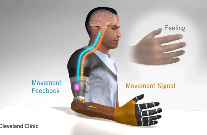 Investigadores de Cleveland Clinic descubren una nueva forma de restablecer la sensación del movimiento en pacientes con amputaciones de miembros superiores
