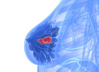 Hoja de datos: La evolución en el tratamiento del cáncer de mama HER2 positivo
