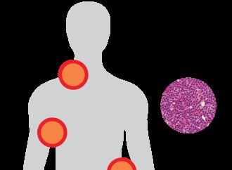 El linfoma es un tipo de cáncer de la sangre que comienza en los glóbulos blancos