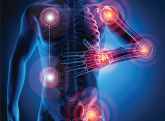 Enfermedad crónica afecta las articulaciones de las manos y pies de manera irreversible