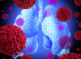 Estigma sobre el cáncer de pulmón invisibiliza realidad de enfermedad