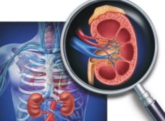 14 de marzo – Día Mundial del Riñón: Una de cada 10 personas sufre de enfermedad renal crónica en el mundo