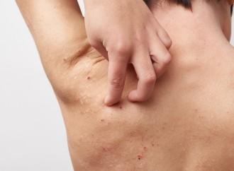 La Dermatitis Atópica desafía a pacientes, profesionales de la salud y políticos de todo el mundo a unirse por la atención