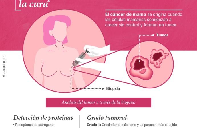 Cáncer de mama triple negativo: alta mortalidad en mujeres jóvenes