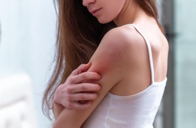 Conmemoración del Día Mundial de la Dermatitis Atópica
